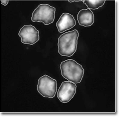 CellProfiler Leukemia Human Megakaryocytes